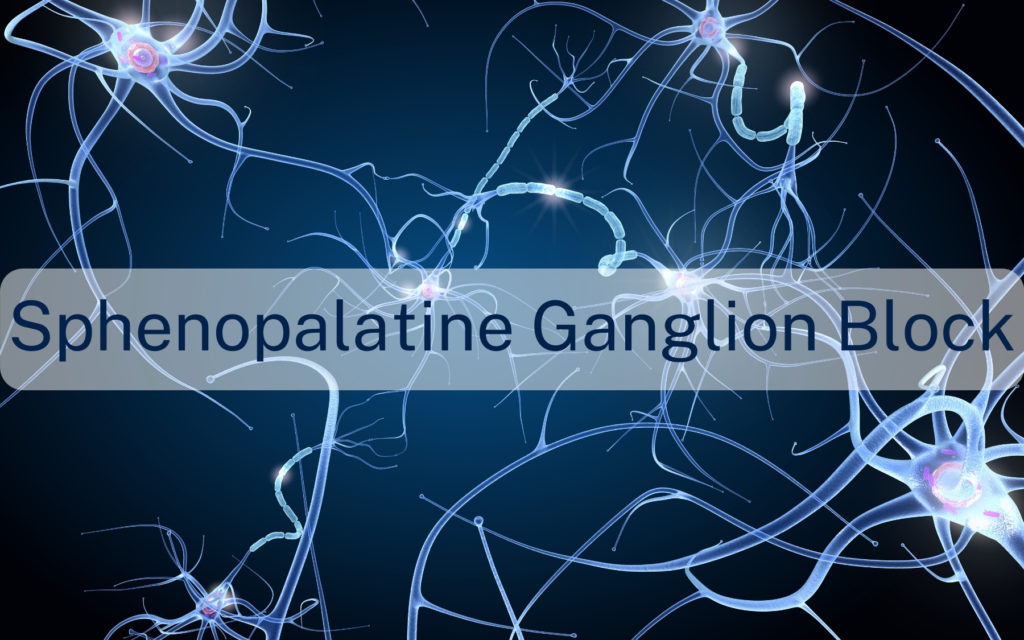 Sphenopalatine ganglion block
